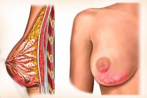 Мастит и лактостаз лечение